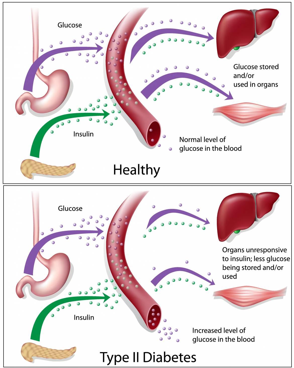 cure-type-2-diabetes.jpg