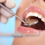 Simple Habits that Can Avoid Damage to Your Teeth