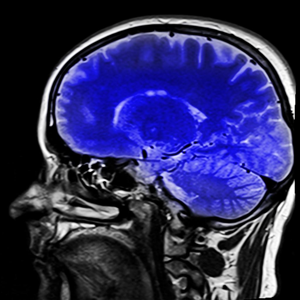 Rejuvenate your brain