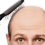 Boons and Banes of Hair Loss Treatments