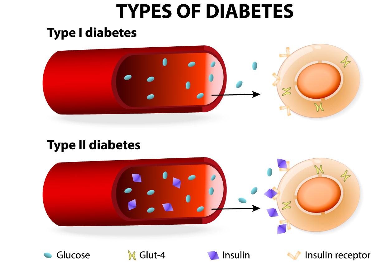 Diabetes Levels