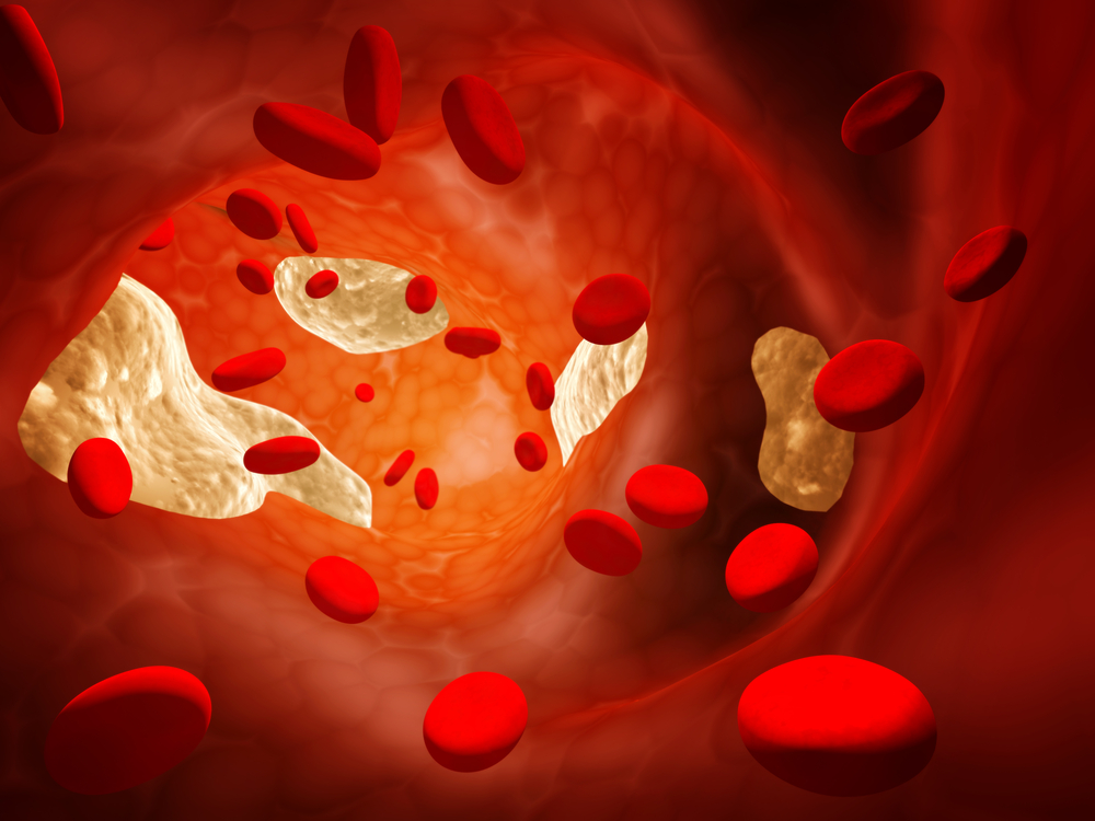 Thrombosis- Causes and Treatment