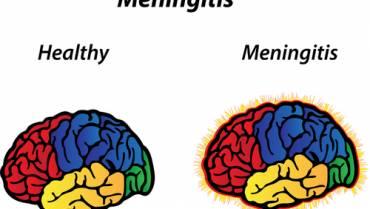 Meningitis: A Rare But Serious Condition