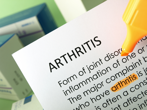 Preventive Measures for Arthritis Relief