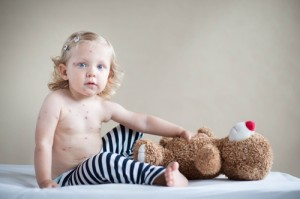 Measles can Take Away your Child's Life - AllDayChemist Health Blog