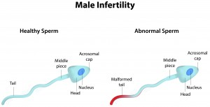 The growing problem of male infertility - AllDayChemist Health Blog