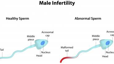 The Growing Problem Of Male Infertility