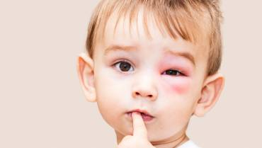 Common and Dangerous Eye Health Risks and Tips to handle them