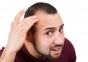 male baldness