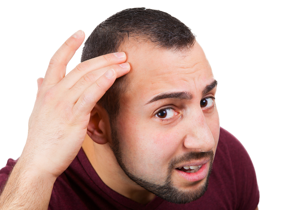 Male Baldness Could Be a Personality Too