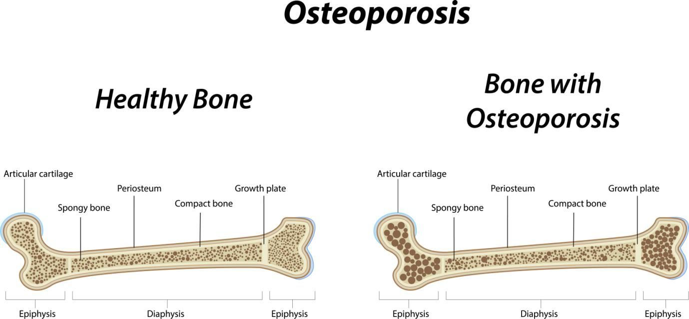 Osteoporosis and the Ways to Deal with It