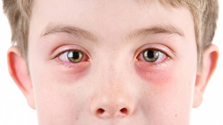 Allergic conjunctivitis treatment for good vision