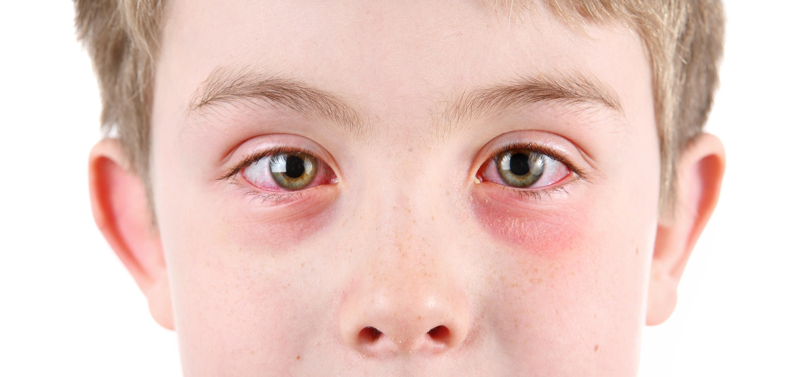 Allergic conjunctivitis treatment for good vision - photo#19