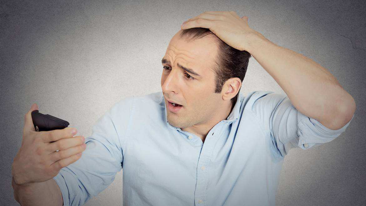 Effective Home remedies for hair loss
