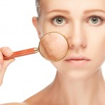 Home remedies for uneven skin tone