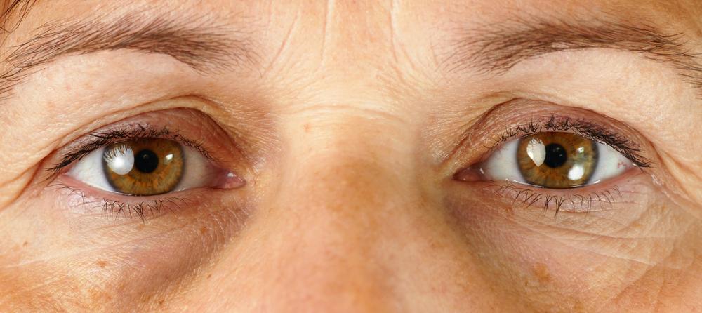 Remove dark circles under eyes