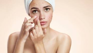 7 Acne Scar Home Remedies