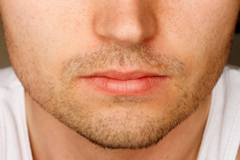 chapped-lips1.jpg
