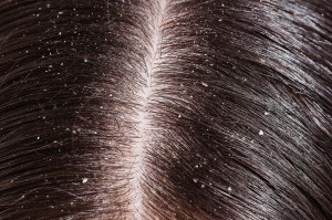Dandruff and dry scalp are different, but need similar treatment