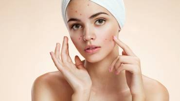 Stay clear about acne myths and facts
