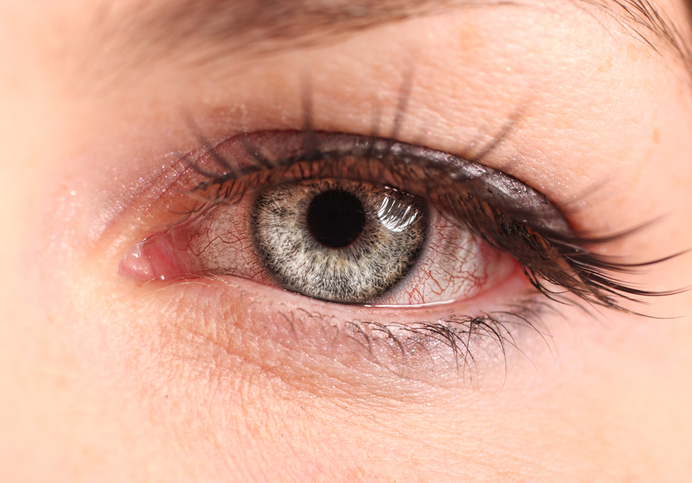 Understand effectiveness of home remedies for pink eye