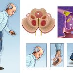 Parkinson's Disease Treatments & Drugs