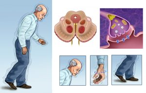 Parkinson's Disease Treatments