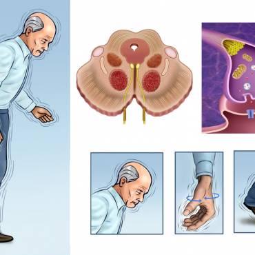 Parkinson's Disease Treatments & Drugs