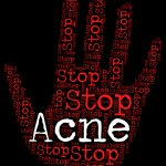 Natural and effective ways to treat acne