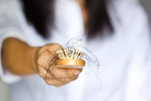 Common Causes of Female Hair Loss and the Solutions to it