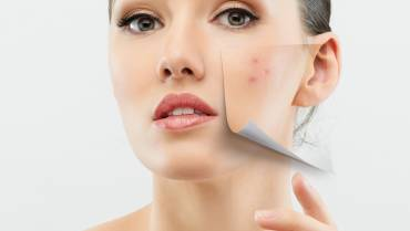 How to Remove & Clear up Acne Overnight