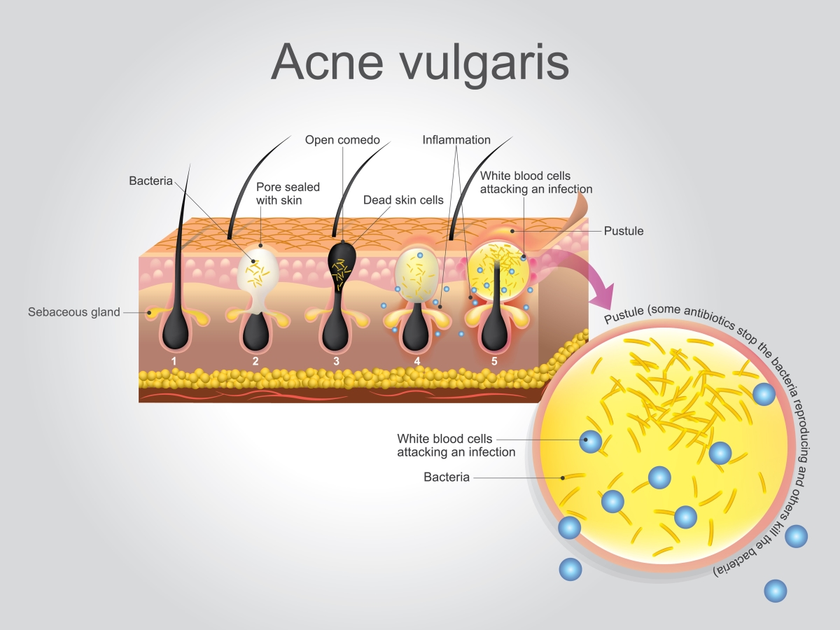 How to treat & manage acne vulgaris