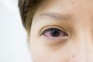 Eye Symptoms and What They Could Cause