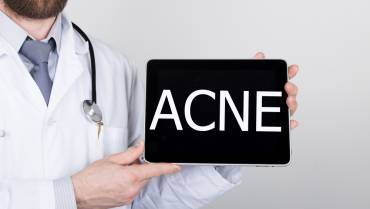 New Acne Treatments in Research