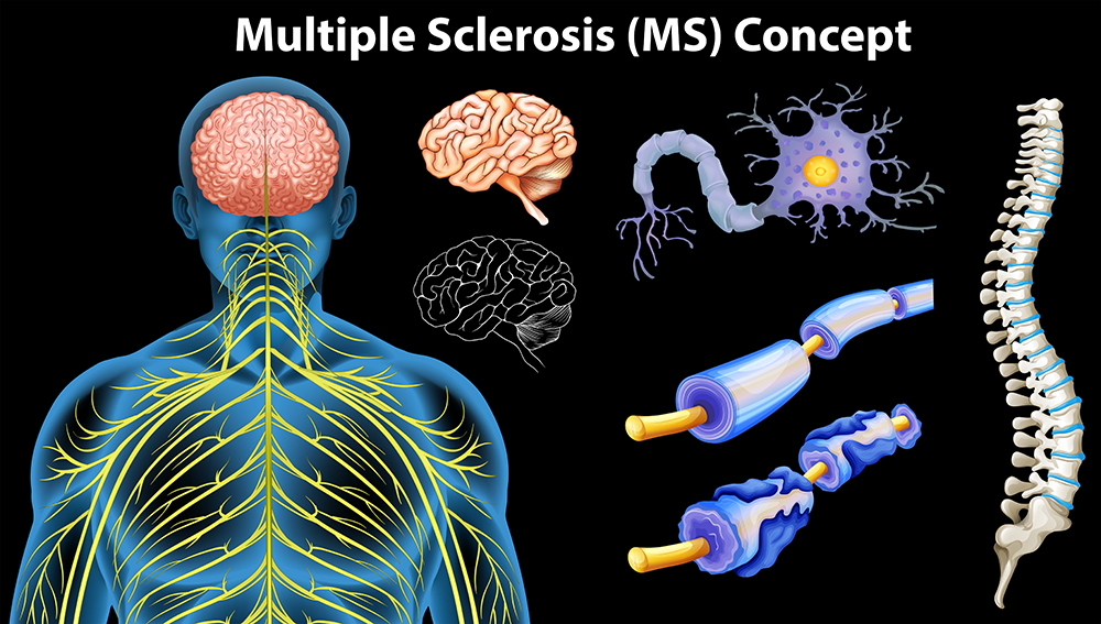 Multiple Sclerosis Can Negatively Affect Your Lung Function