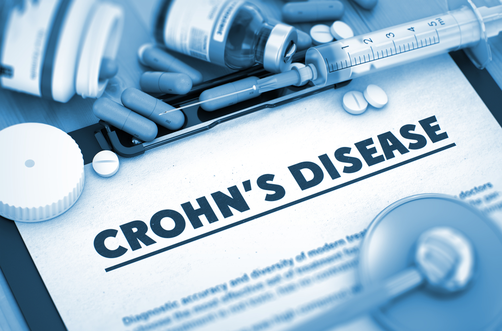 Questions to ask your nutritionist when diagnosed with Crohn's disease