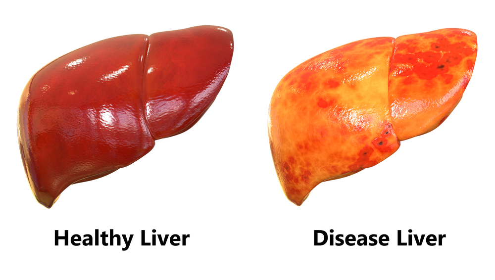 Know The Essential Facts About Your Liver