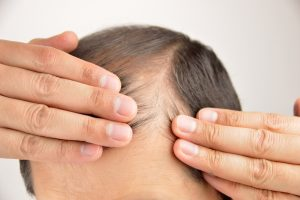 Promote Hair Growth and Prevent Hair Loss