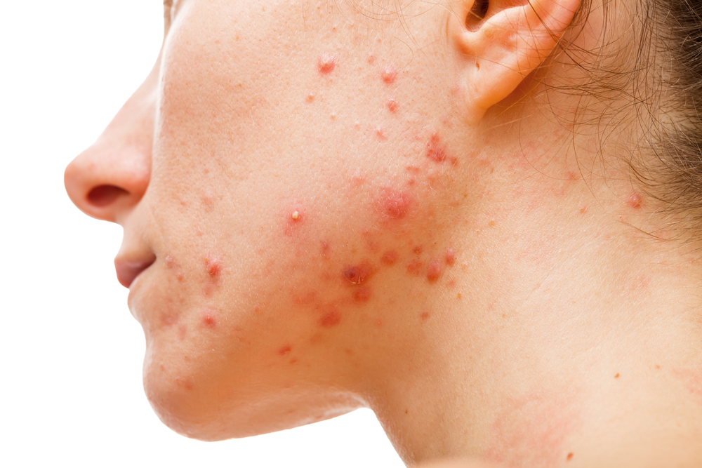 Top 5 Reasons Why Your Acne Keeps Coming Back!