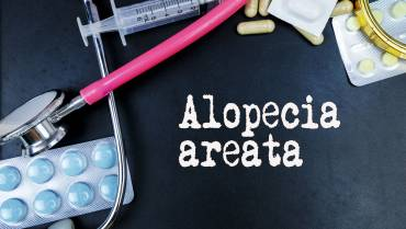 What is Alopecia Areata? Can this type of Hair Loss be treated?
