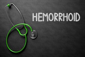 All about Hemorrhoids