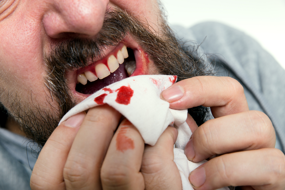Easy Remedies to Treat Bleeding Gums