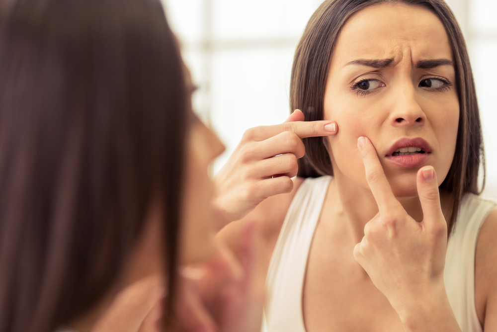 Adult Acne Causes and Remedies