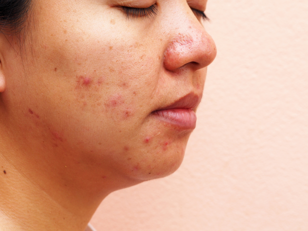 Ways to Fight Pregnancy Acne