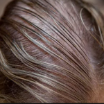 Natural Treatments for Thinning Hair