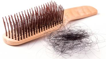 Lack of Sleep May Lead to Hair Loss