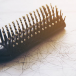 Probable Causes of Hair Fall