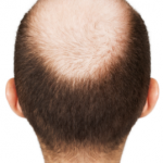 Ways to make Hair Grow Faster when You Have a Bald Spot