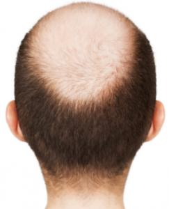 bald hair