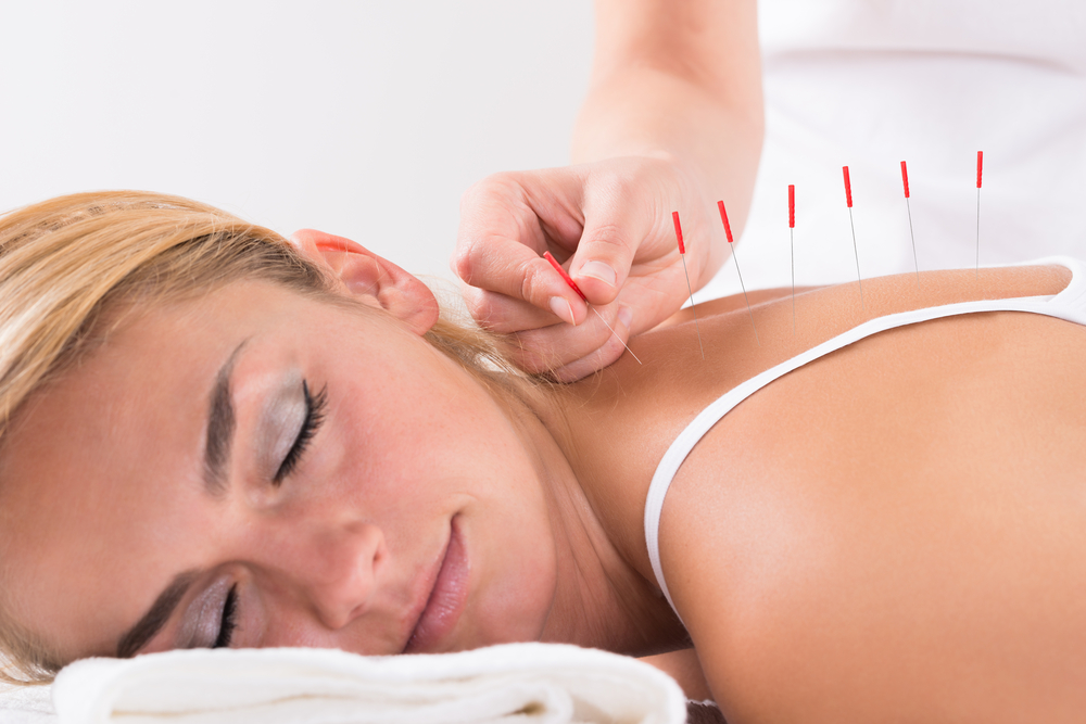Probable Benefits of Acupuncture